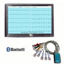 ECG informatisé Bluetooth® avec analyse et interprétation