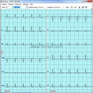 Logiciel M-Base® pour transfert PC de l'ECG éolys®