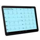 """ECG sur Tablette Androïd 10"""" en Bluetooth, affichage 12 pistes, mesures, envoi"""